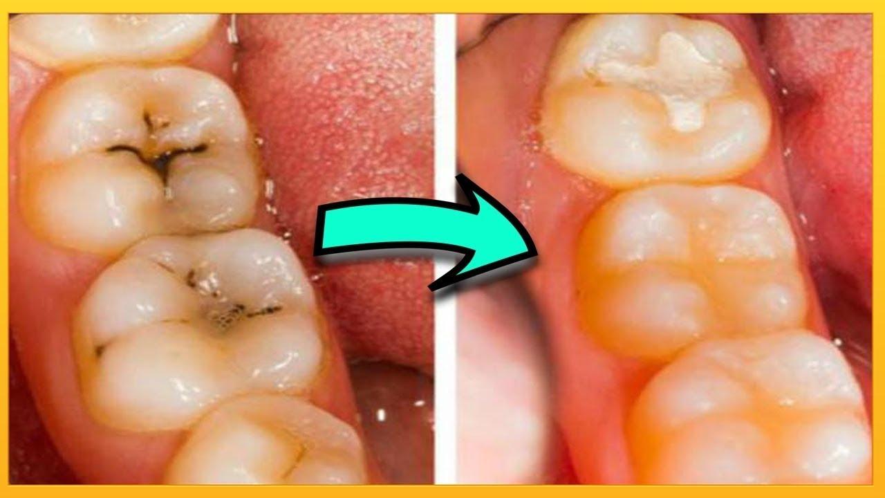 علاج تسوس الاسنان طرق معالجة تسوس الاسنان صباح الحب