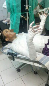 Nazeera receiving hospital treatment after fire attack. (Morning Star News via Saeed)