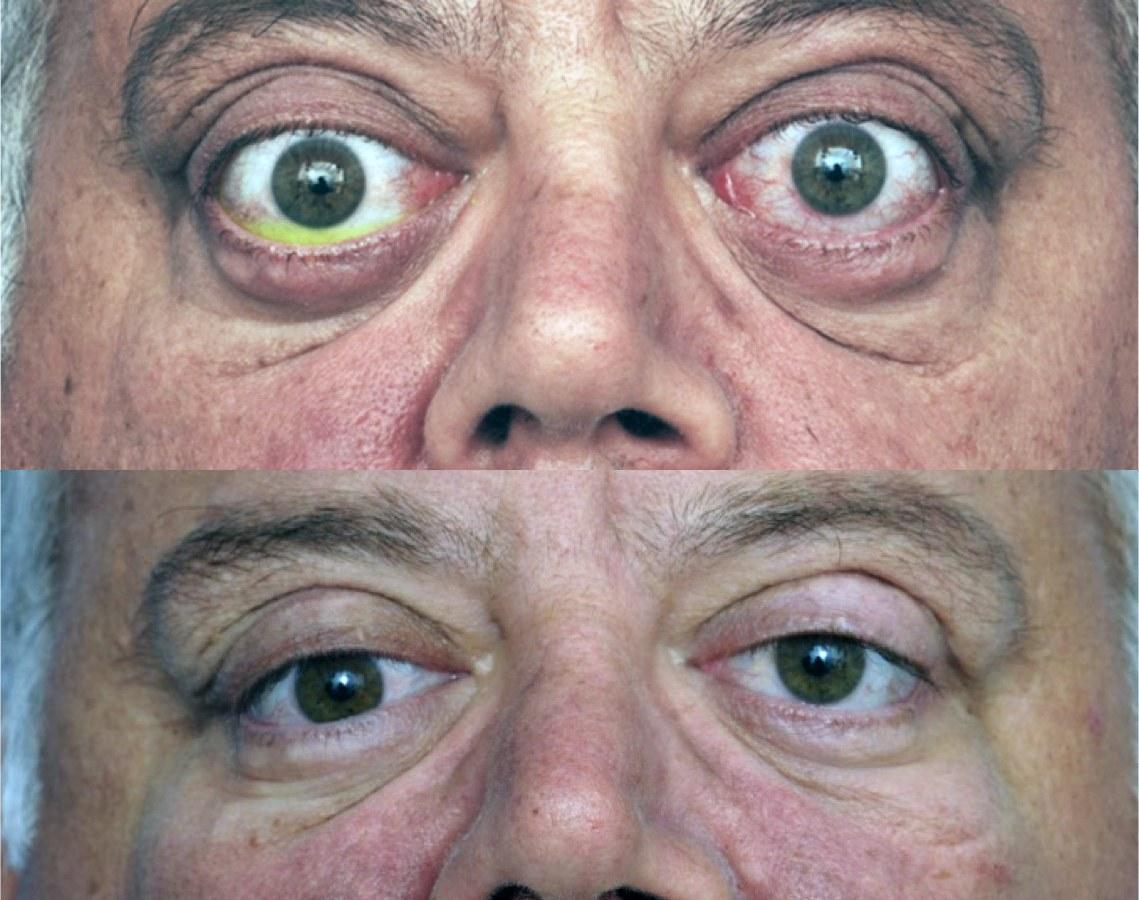 Эндокринная офтальмопатия.