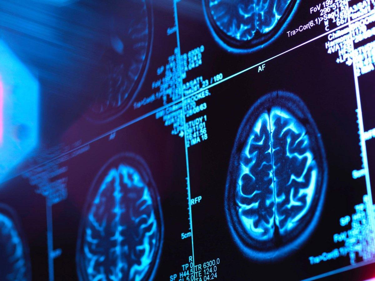 Болезнь Альцгеймера и BACE1-ингибиторы: это конец