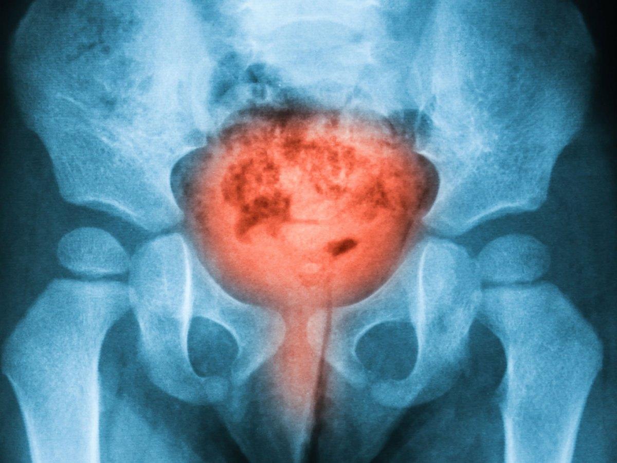 «Рубрака» не повлиял на запущенный рак мочевого пузыря