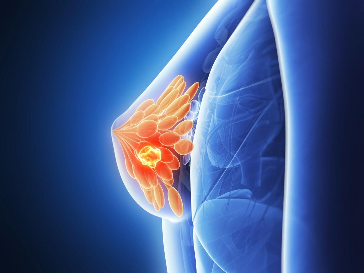 «Китруда» и лечение рака груди