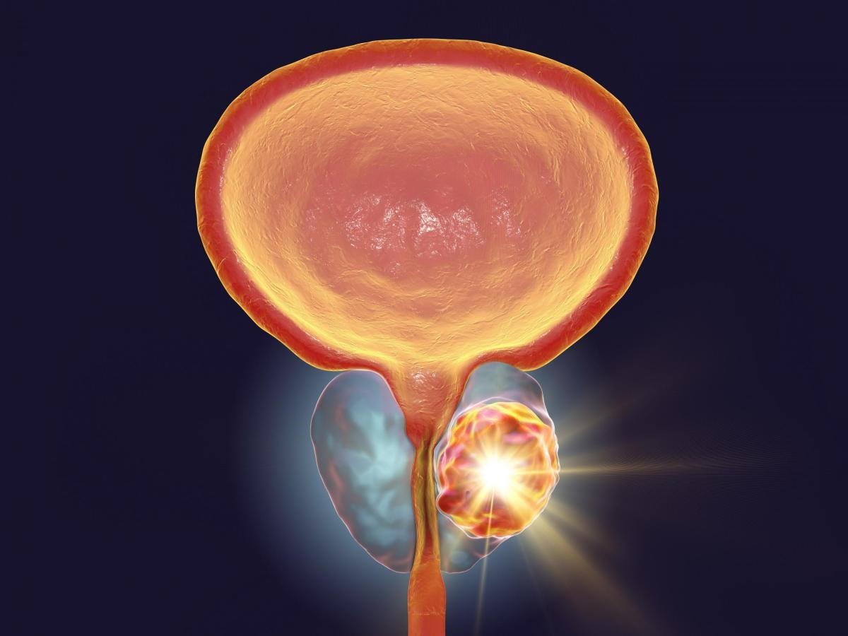 Рак простаты: на сцену прецизионного лечения выходят PARP-ингибиторы