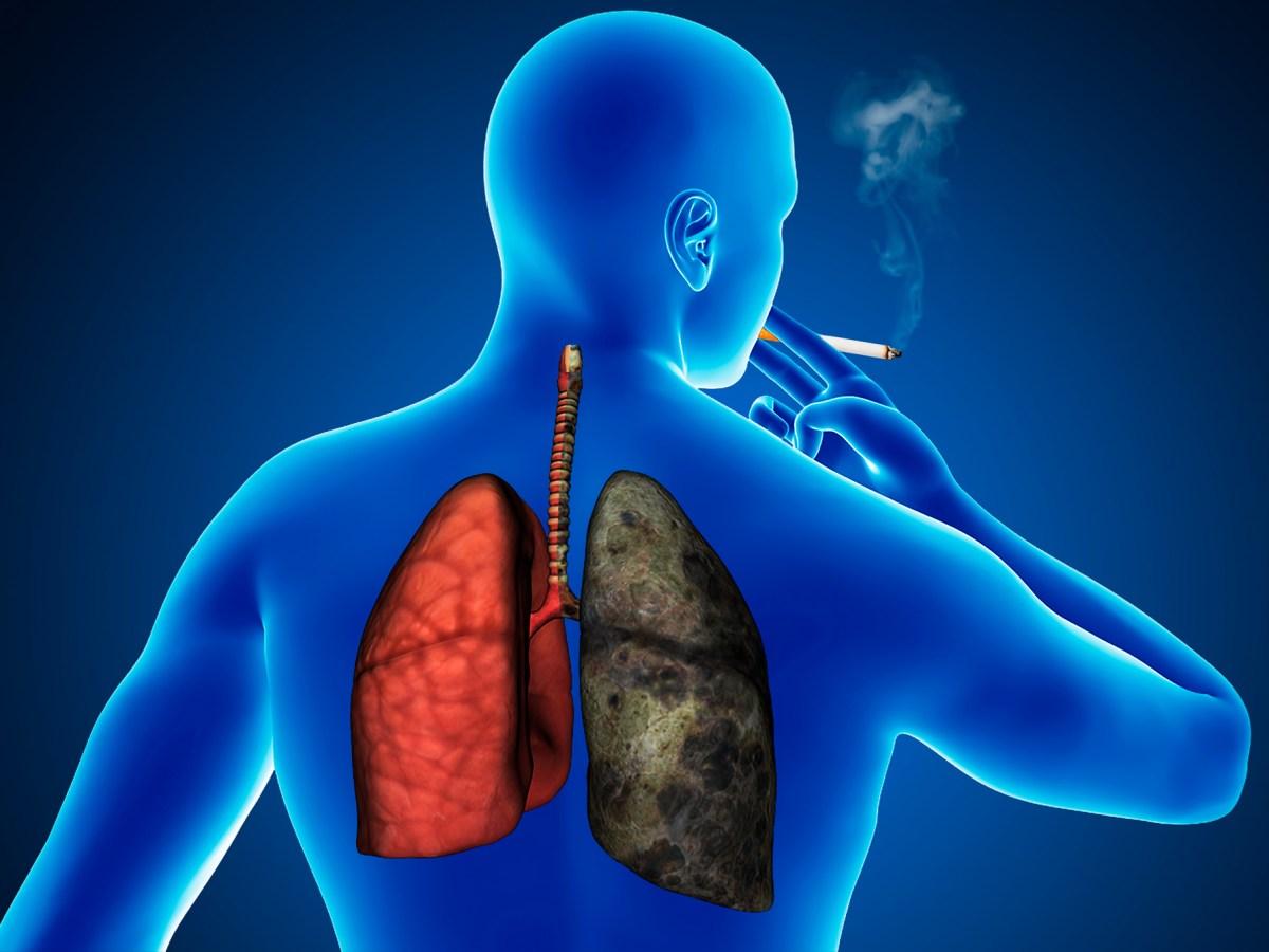 lung cancer - «Тецентрик»: альтернативная первая линия терапии немелкоклеточного рака легкого