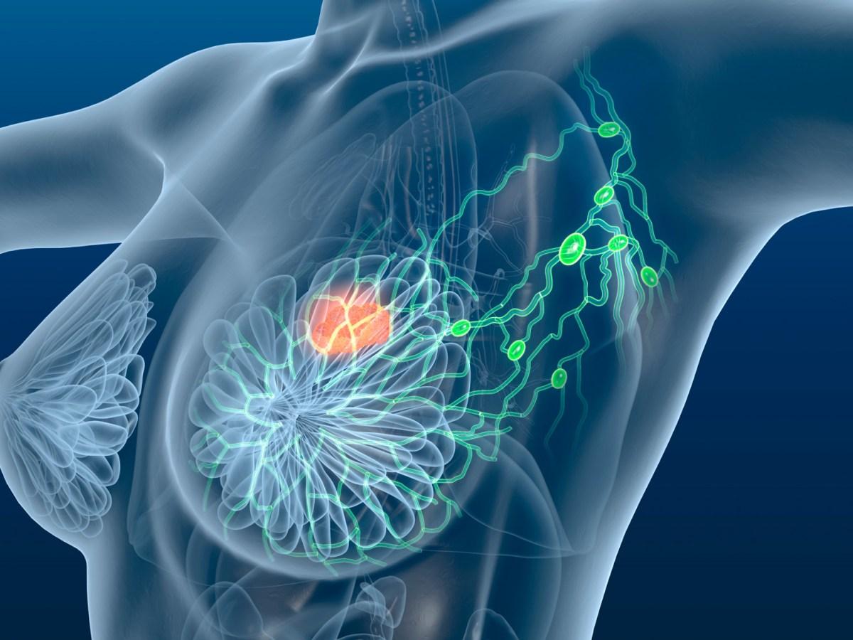 «Китруда»: еще один шаг к победе над раком груди