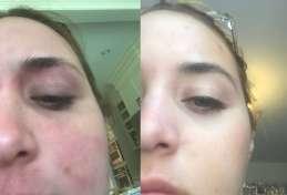 Результаты лечения атопического дерматита после считанных инъекций «Дупиксента» (Dupixent, дупилумаб). Изображение: xoQueefEaterox/Reddit.