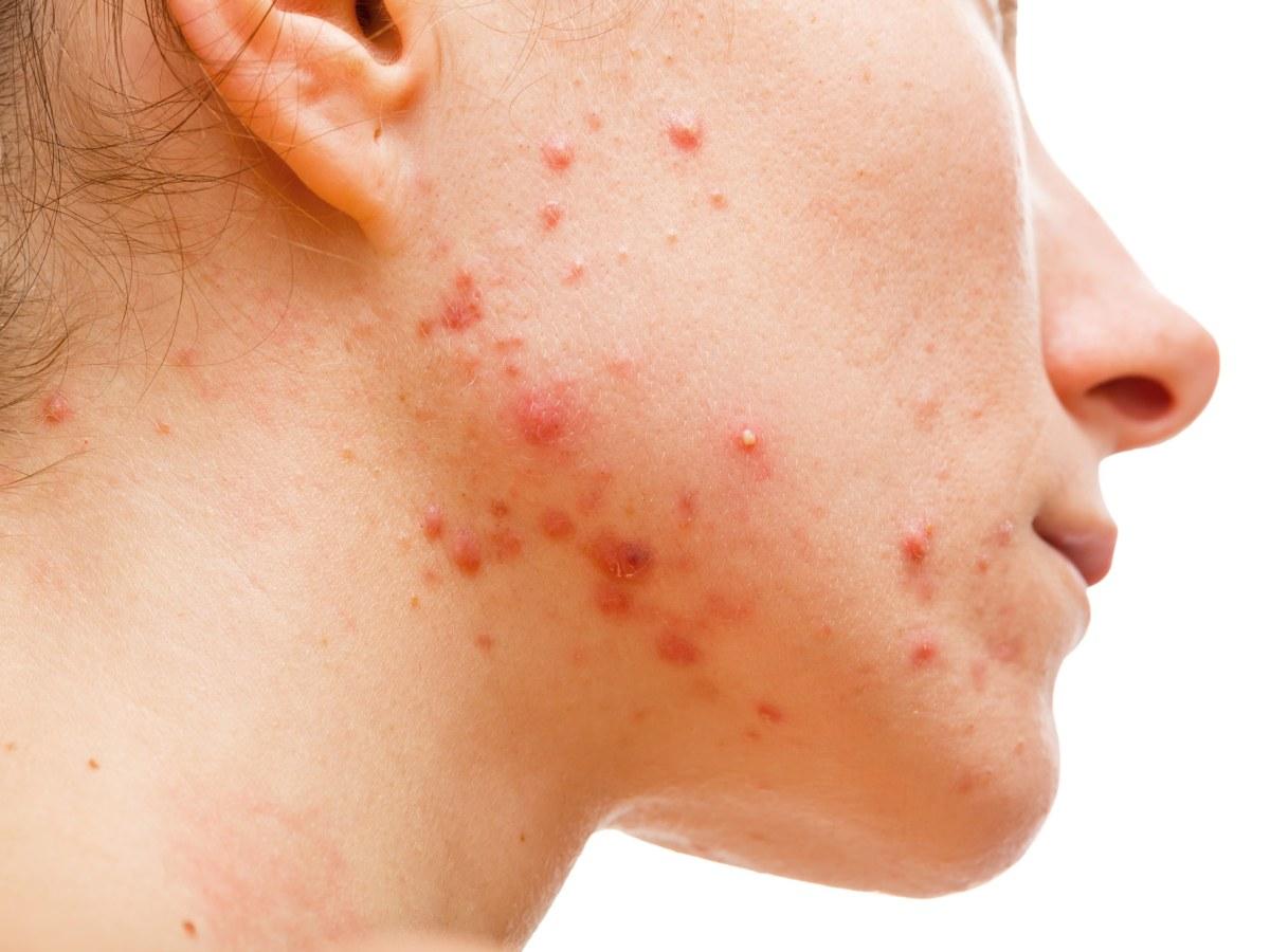 «Винлеви»: новое лекарство против акне