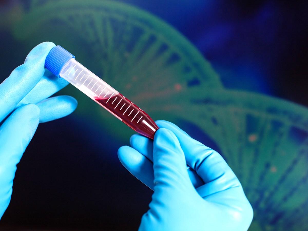 Генная терапия гемофилии A: гонка за полным излечением