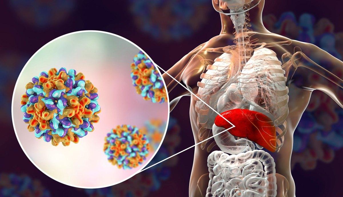 Gilead завладела единственным лекарством от вирусного гепатита D
