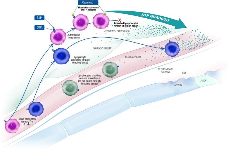 «Зепосиа»: новый препарат для лечения рецидивирующего рассеянного склероза