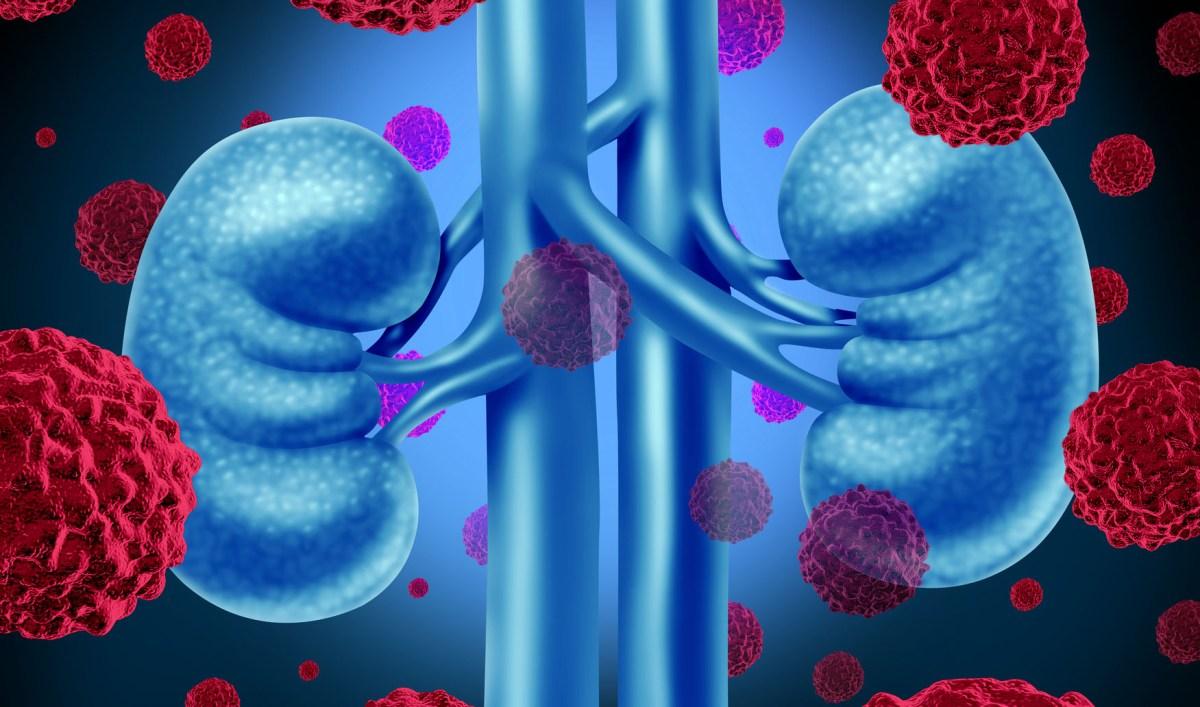 «Кабометикс» и «Опдиво»: новый вариант первоочередного лечения рака почки