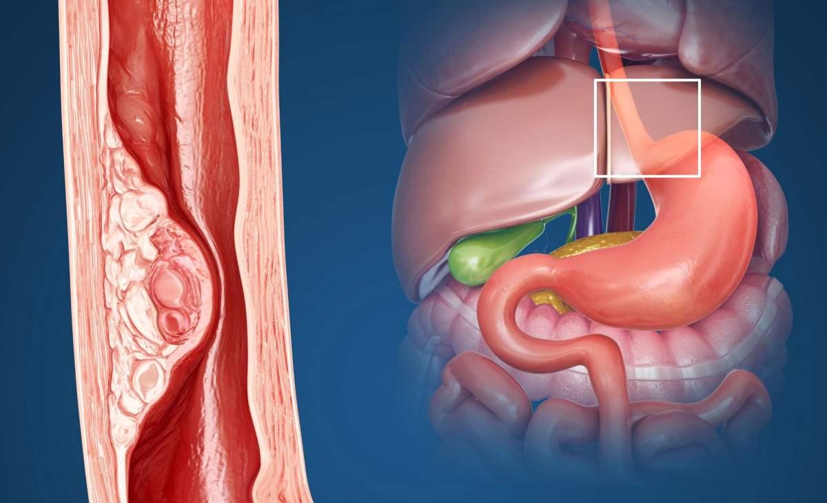«Китруда» одобрен для первоочередного лечения рака пищевода