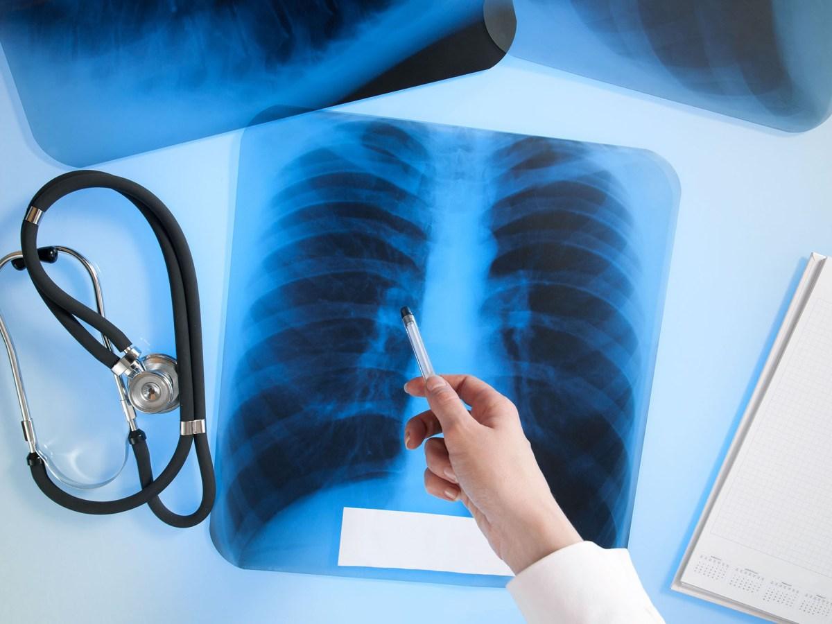 «Китруда» и «Опдиво» отказались от лечения мелкоклеточного рака легкого