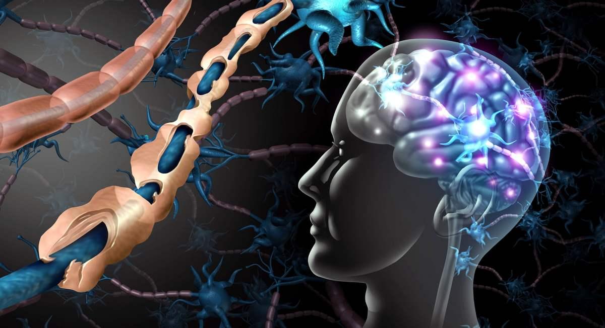 «Понвори»: еще одно лекарство от рассеянного склероза