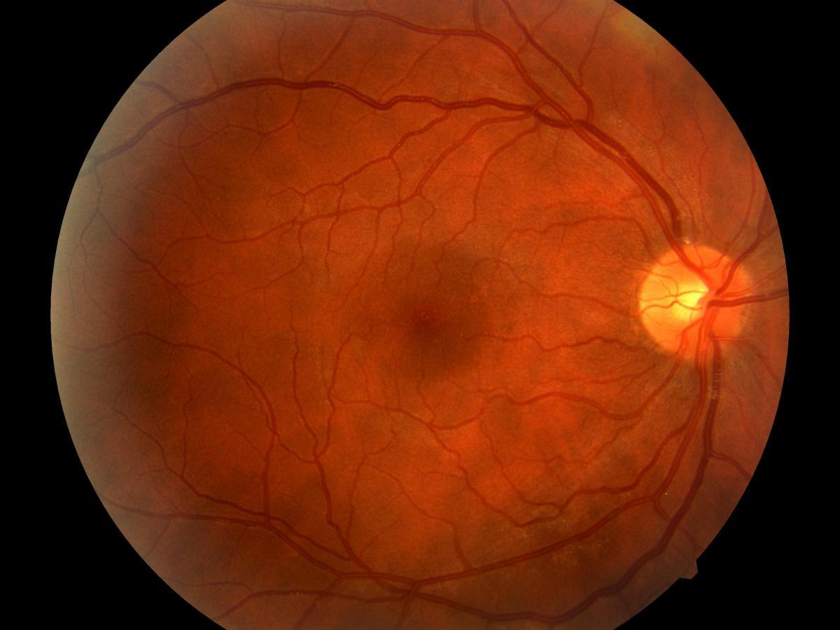 Глаза — слабое место диабетиков.