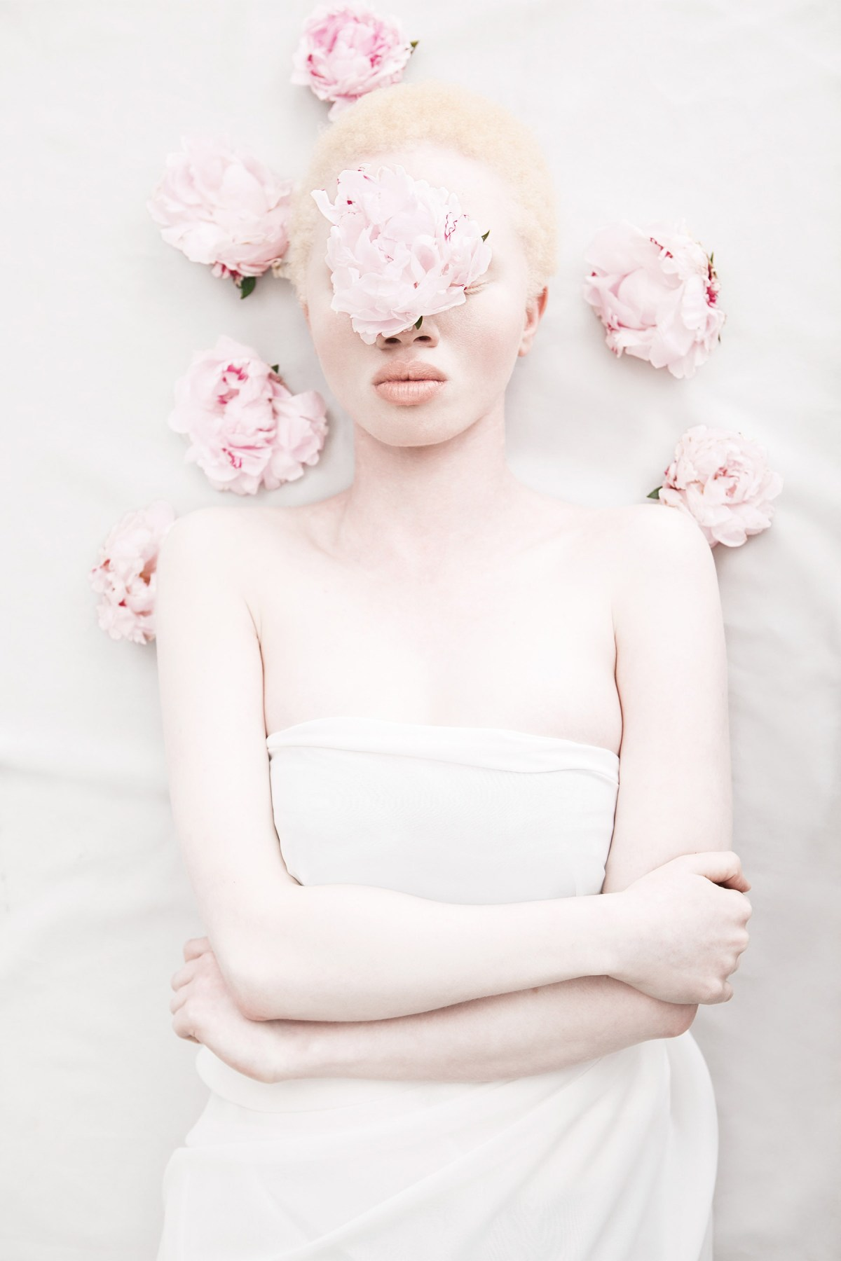 african-albinism-moss-and-fog-10