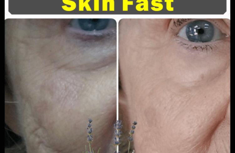 Best Essential Oils To Tighten Loose Skin Fast