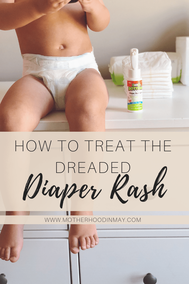 how to treat diaper rash