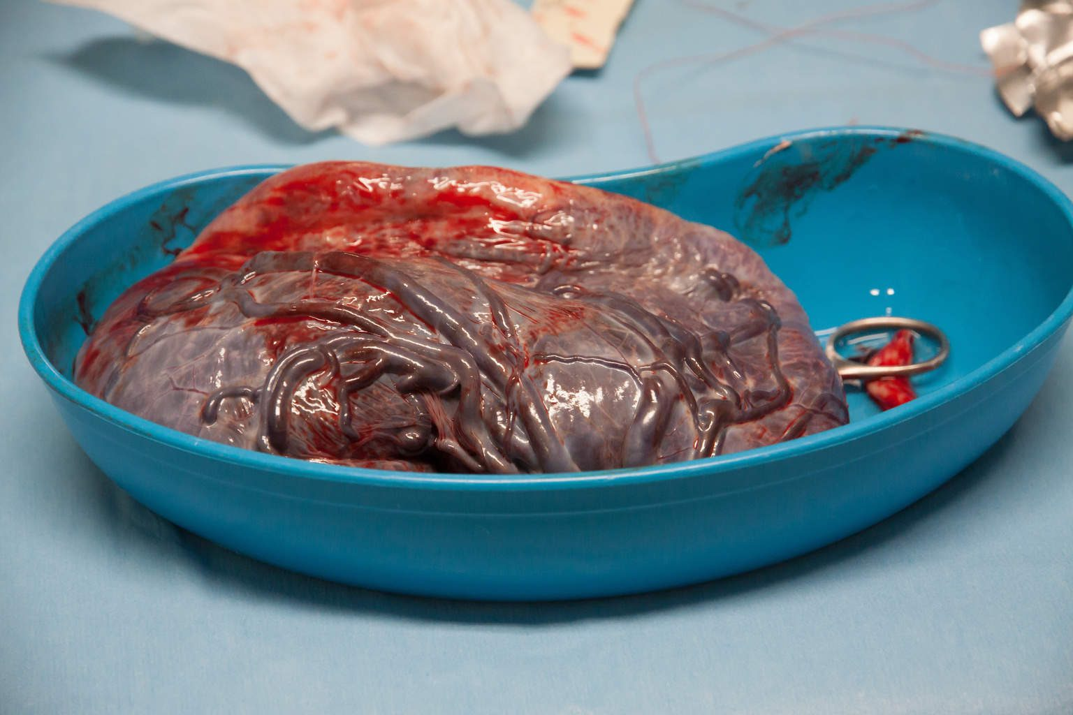 What is it really like to....eat your own placenta ...