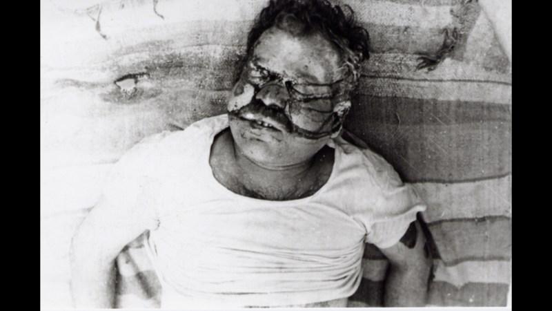 blinder-mann_bhopal
