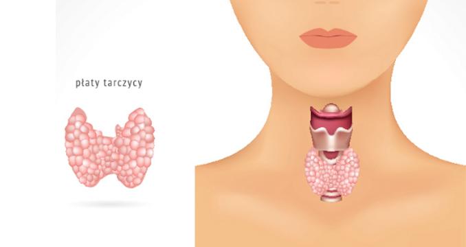 Tarczyca - jak naturalnie leczyc niewlasciwe dzialanie