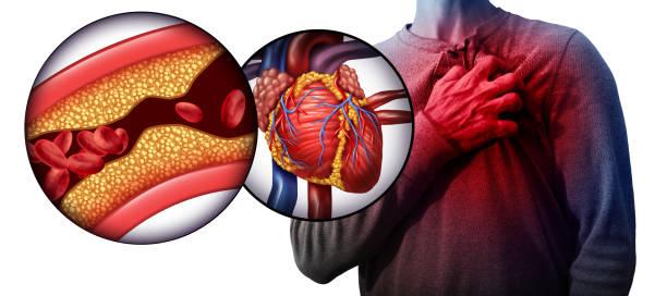 تحاليل الدم ، الكوليسترول