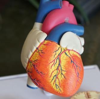 وقف القلب والأوعية الدموية Arrêts cardiovasculaires