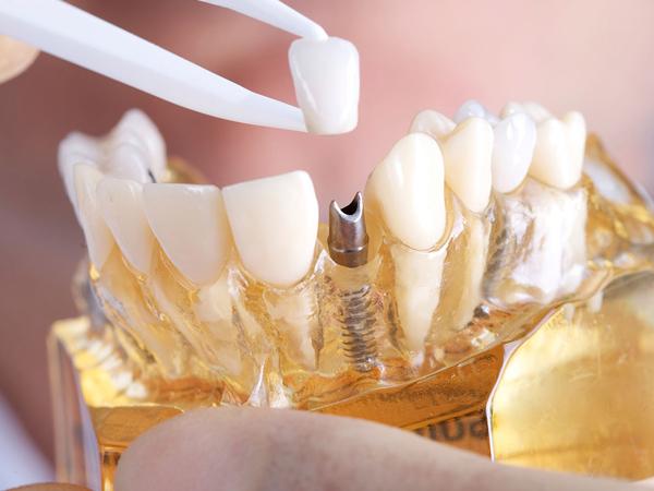 Dental Implantology