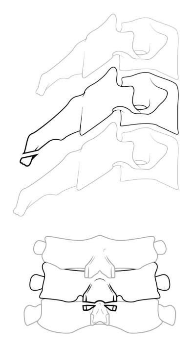 flexioninjury2