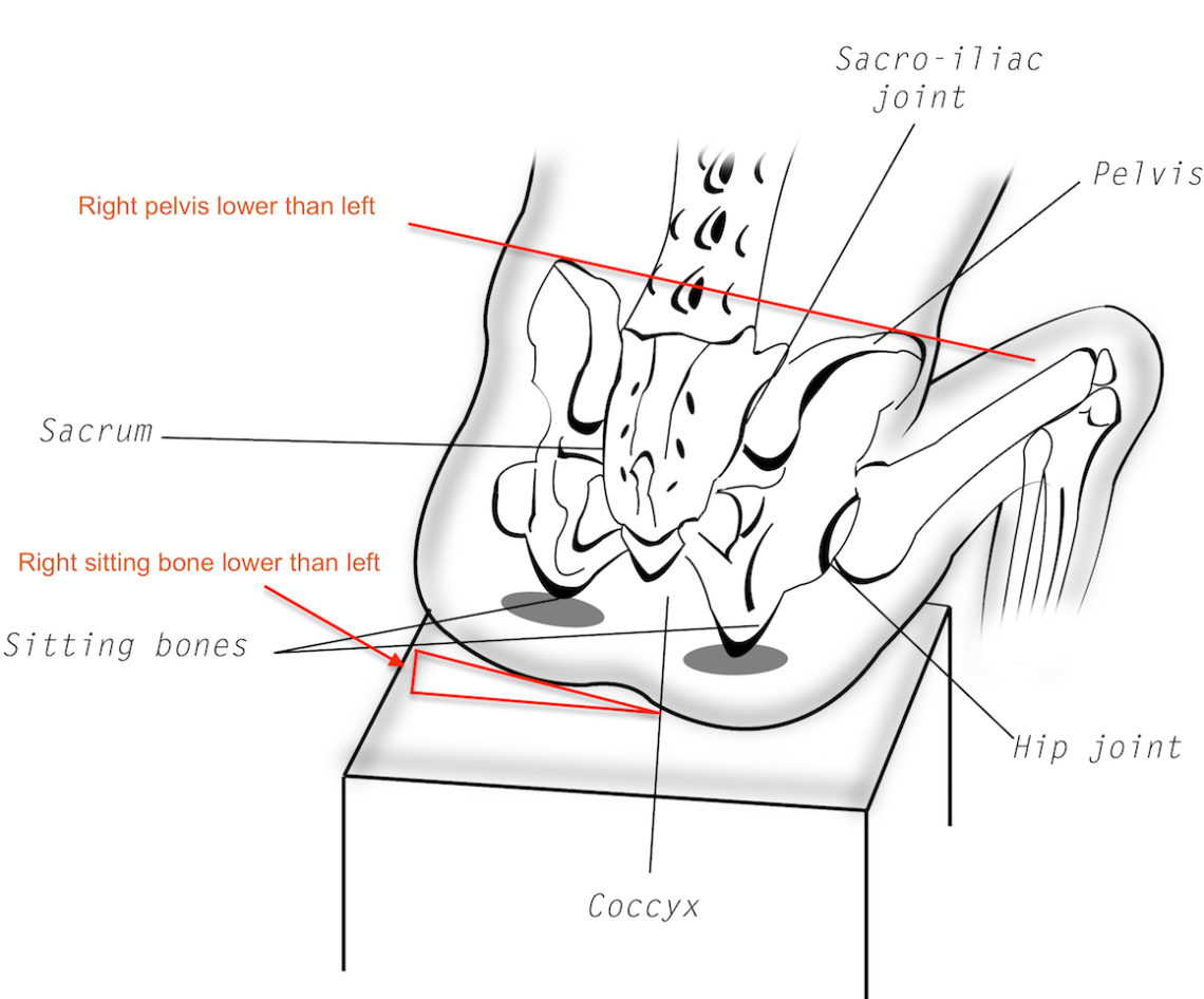 Diagram Of Female Hip Bone