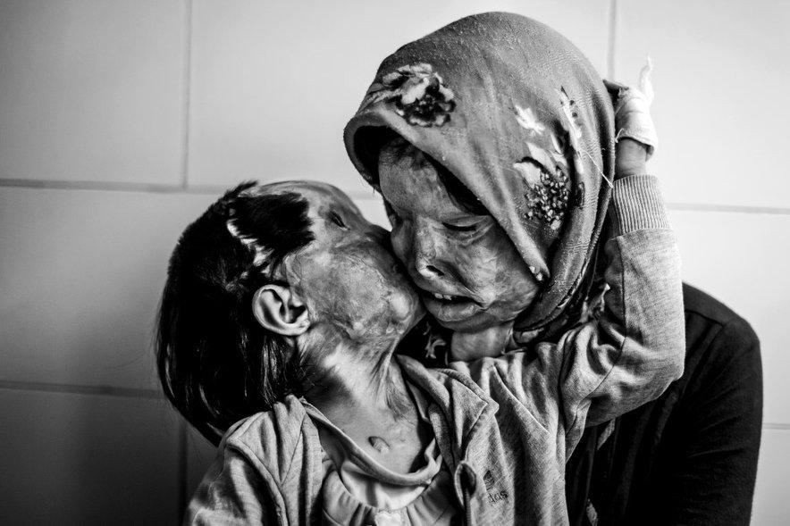 Une mère et sa fille de 3 ans. Elles ont été attaquées à l'acide par le père de la famille.