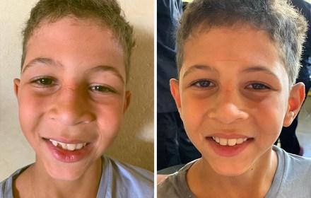 brazilian-dentist-travel-poor-people-teeth-fix-felipe-rossi-29-5db941b88c042__700