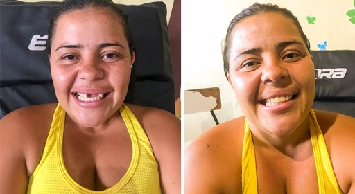 brazilian-dentist-travel-poor-people-teeth-fix-felipe-rossi-30-5db941ba7cb0a__700