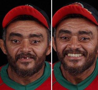 brazilian-dentist-travel-poor-people-teeth-fix-felipe-rossi-33-5db94fa3b7aee__700