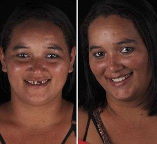 brazilian-dentist-travel-poor-people-teeth-fix-felipe-rossi-38-5db95187a2475__700