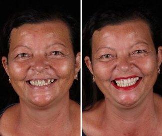 brazilian-dentist-travel-poor-people-teeth-fix-felipe-rossi-45-5db95473cc596__700