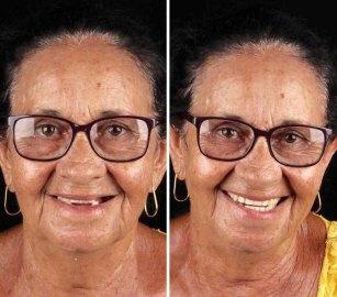 brazilian-dentist-travel-poor-people-teeth-fix-felipe-rossi-49-5db955b6df0e3__700