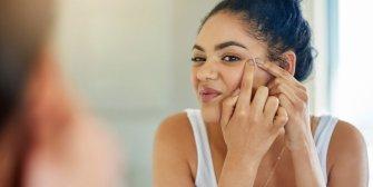 Stop à l'acné de l'adulte !