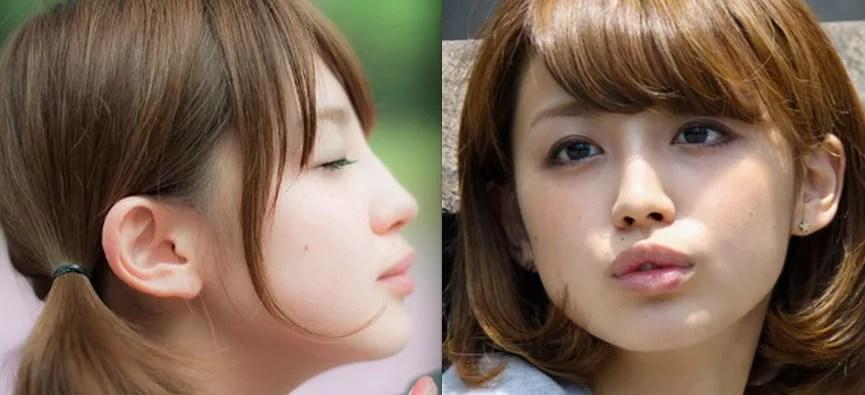 宮司愛海の鼻筋が整形疑惑?