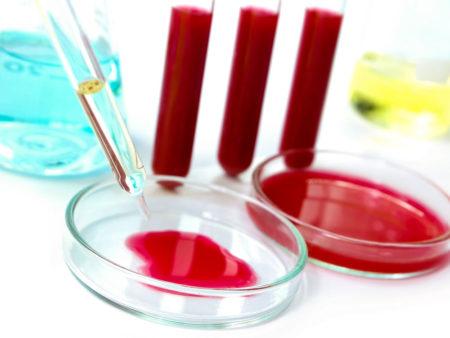 Сколько дней делают биохимический анализ крови