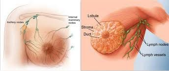 8 Major Signs & Symptoms of Breast Cancer