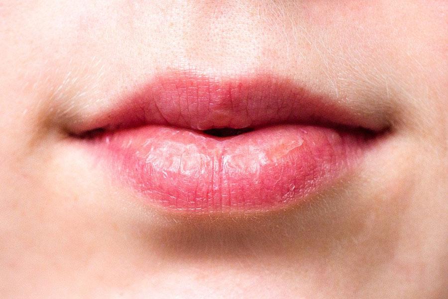 Comment éviter et traiter les lèvres sèches naturellement ?