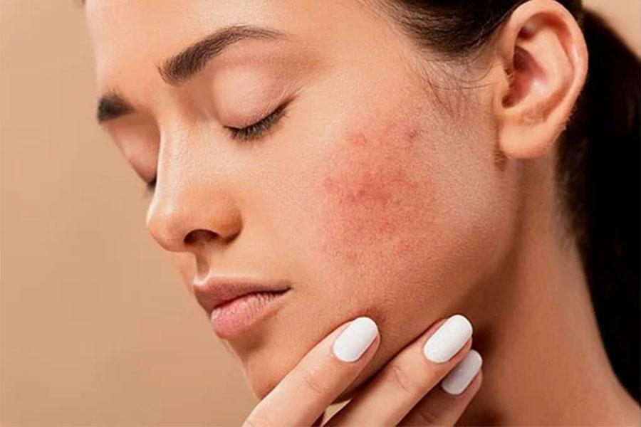 Conseils pour traiter l'acné