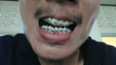 Getting Braces in Thailand: My Unanticipated Orthodontic Journey (1)