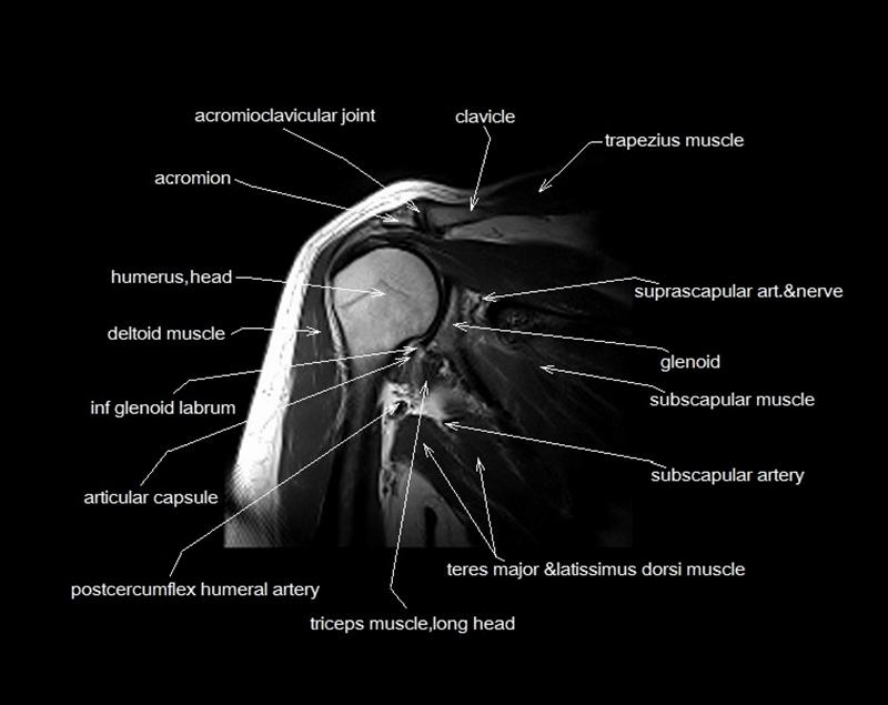 Abdominal Cross Sectional Anatomy Ct