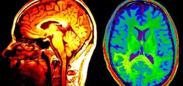 mri, mri scan, mri contrast, mri imaging, imaging