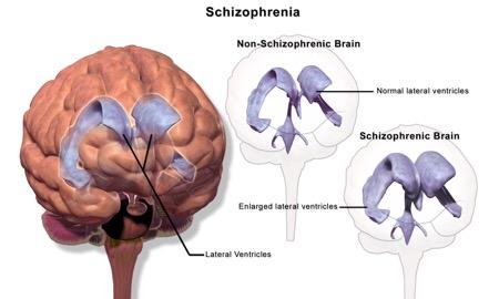 Apophenia The Prodromal Stages Of Bipolar-Solipsism & Schizophrenia
