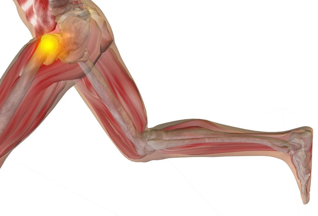 Hip Flexibility Improvement Treatment