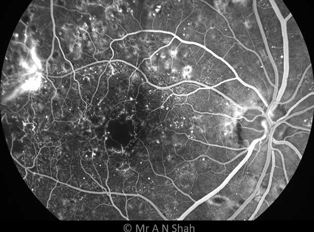 This is an early frame from a FFA test in a patient with diabetes. It demonstrates several abnormalities that can help guide diagnosis and treatment, including small bright white spots (microaneurysms), an enlarged and irregular dark zone in the middle of the macula (foveal avascular zone), and a bright area to the left demonstrating leaking dye (new abnormal blood vessel growth).