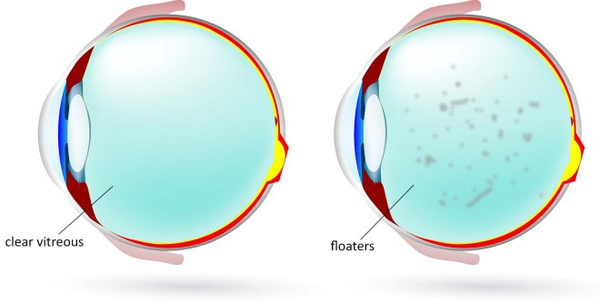 In the image on the left, the vitreous gel is clear, allowing normal vision. In the image on the right, the vitreous contains floaters which will cause intermittent blurring or obscuration of the vision. Sometimes patients can temporarily clear the floaters away by looking away from the object of interest and then rapidly looking back at it.